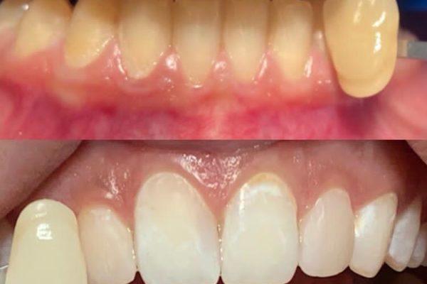 In-Office-Bleaching – mit weißen Zähnen in den Frühling